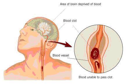 Prepoznavanje moždanog udara