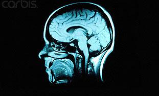 Homoseksualci i heteroseksualne žene imaju slične mozgove