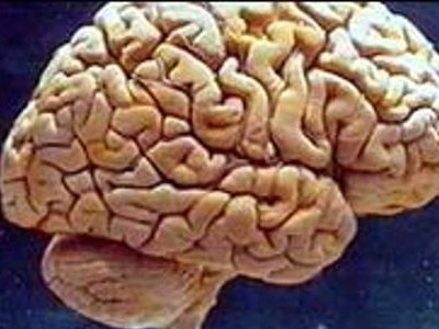 Novi trag u otkrivanju uzroka Alzheimera