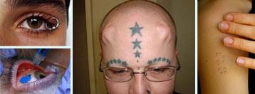 'In' su tetovaže očiju i potkožni implantati...