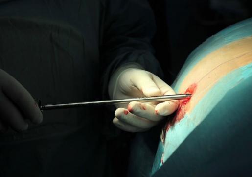 Ženi u kralježnicu ugradili usadak kroz rez od 0,5 cm