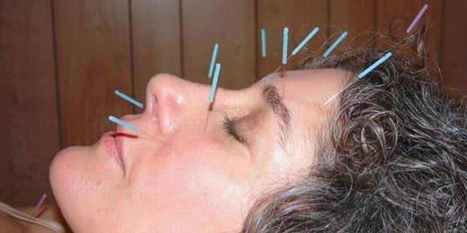 Akupunktura učinkovito liječi migrene