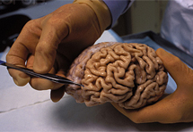 Alzheimer je dijabetes mozga