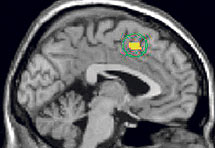 Znanstvenici otkrili centar za ljubomoru