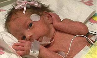 Palčići - prva udruga za brigu o prerano rođenima
