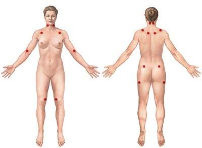 Joga ublažava simptome fibromijalgije