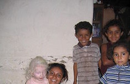 U Tanzaniji prodaju udove ljudi s albinizmom
