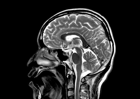 Čitatelju Dnevno.hr-a dijagnosticiran mozak!