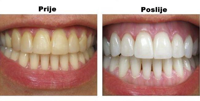 Izbjelila je zube bez jednog dinara: Samo je prokuvala ovaj sastojak, a rezultati su nevjerovatni!