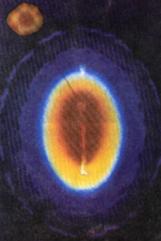 Svetleće telo