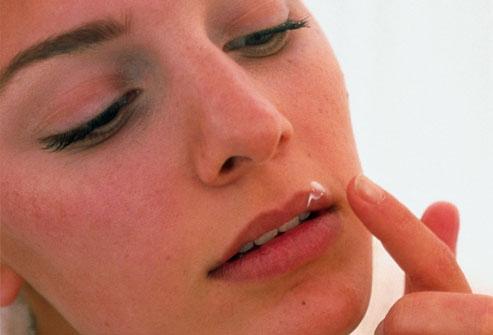 Herpes simplex virusna infekcija