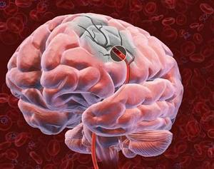 Lečenje neizlečivih bolesti - Rak mozga