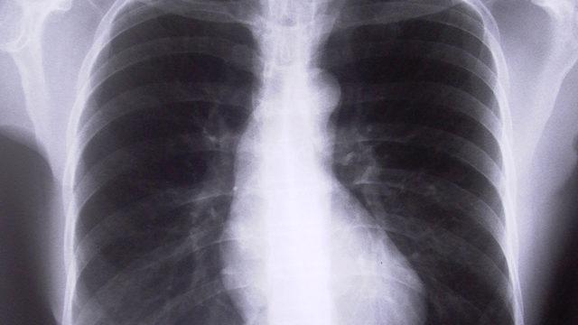 Lečenje neizlečivih bolesti - Rak pluća