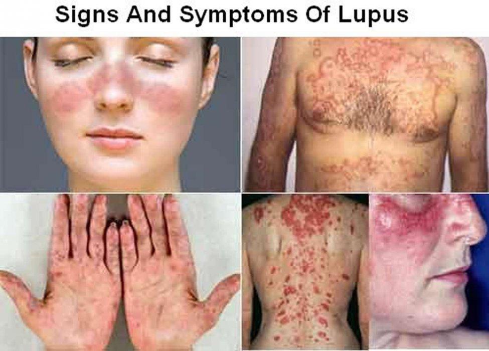 Lečenje neizlečivih bolesti - Lupus