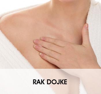 RAK DOJKE - BOLEST MODERNOG DOBA