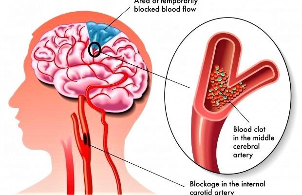 MOŽDANI UDAR - Znakovi bolesti i primjeri iz prakse
