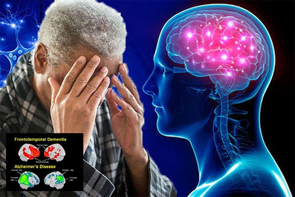 Slučajno otkriven lijek protiv 'Alzheimera'
