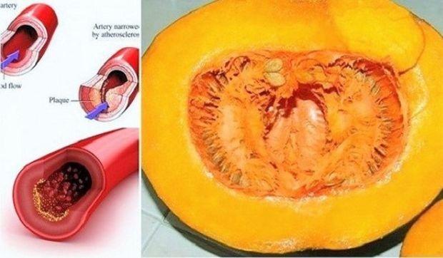 Pomoću ovog recepta recite ZBOGOM povišenom holesterolu, šećeru u krvi, masnoćama i trigliceridima!