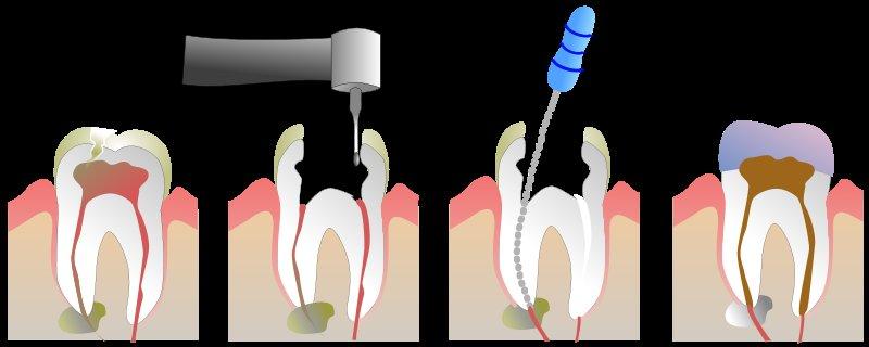 Zbog čega je punjenje korijenskog kanala zuba opasan zahvat?