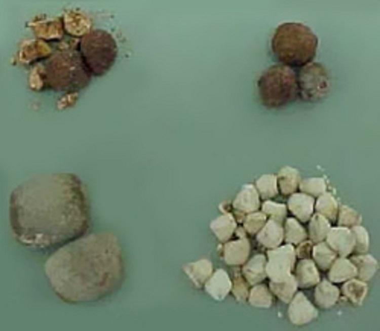 Otapanje žučnih kamenaca