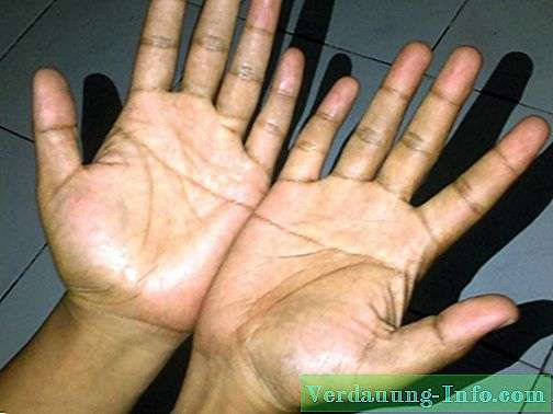 Simianska linija u dlanu: značenje (za Tiaru)