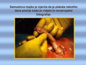 samuelova ruka