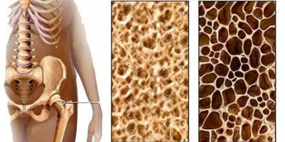 Osteoporoza - pomoć i samopomoć