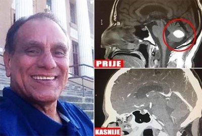 'MOĆ MOLITVE' – Liječnici šokirani nakon što je tumor na mozgu kod pacijenta nestao bez operacije
