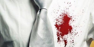 Besplatno tumačenje snova - ShadowOfSoul (Davor, bijela košulja, krv, crvena mrlja)